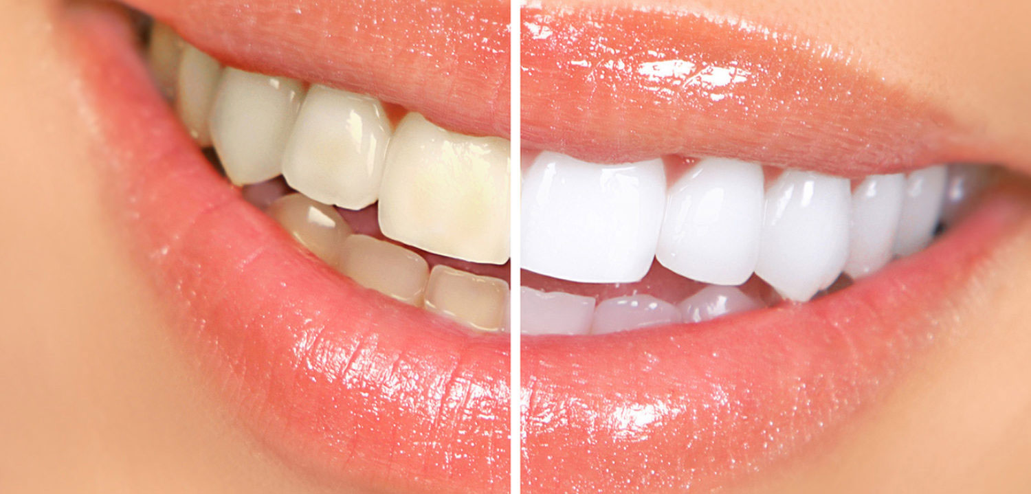Teeth-whitening-houston-77055