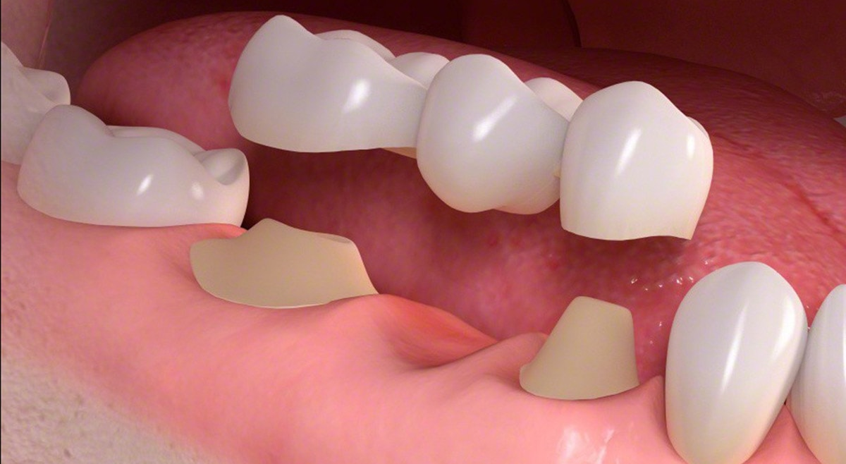 Dental Bridge Houston 77055