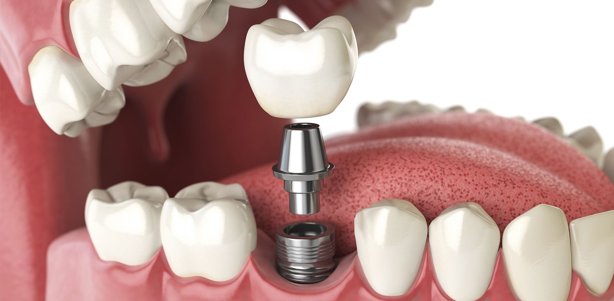 Dental Implant Houston