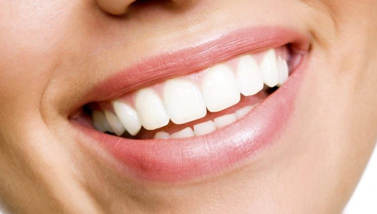 teeth-whitening-brighten-dental-houston
