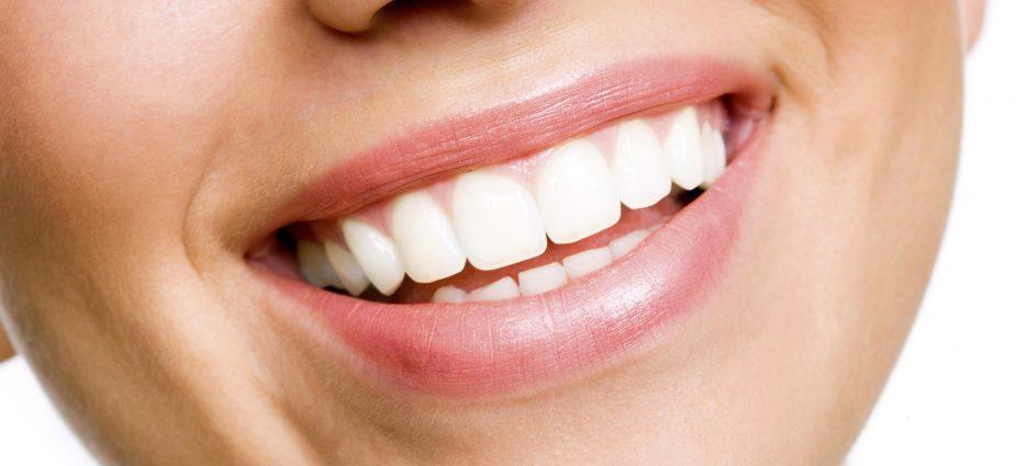teeth-whitening-brighten-dental-houston
